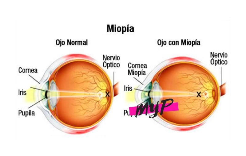 Causas de la Miopía 4