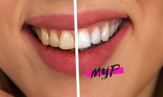 Cómo blanquear los dientes en casa 2