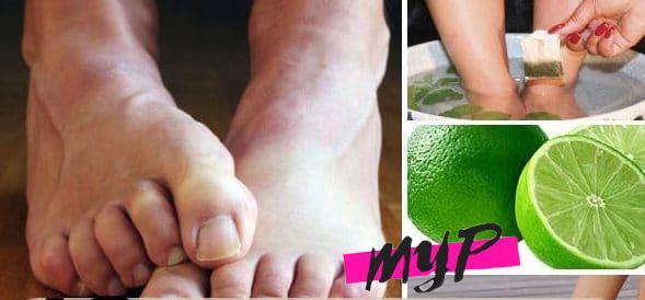 Cómo eliminar el mal olor de los pies 2