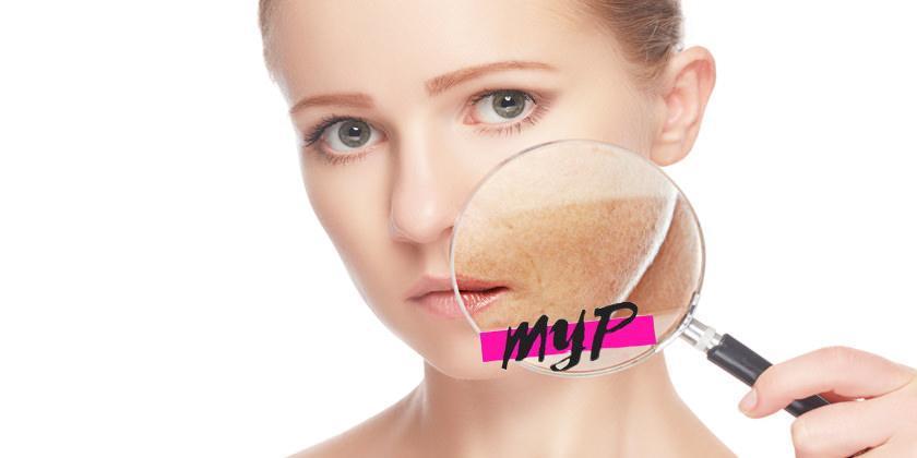 Desarrollar manchas en la piel 1
