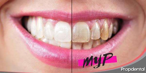 ¿Por qué se manchan los dientes? 1