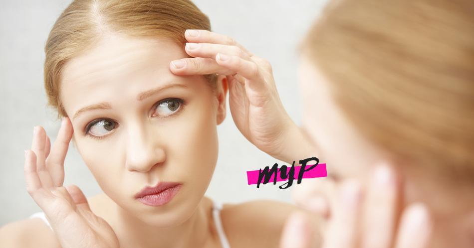 Tips para prevenir el acné 4