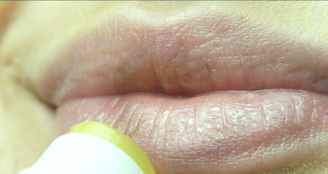 Labios secos: que puede ser y que hacer 1