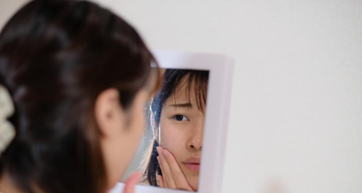 Cómo tratar y prevenir las cicatrices que deja el acné 1