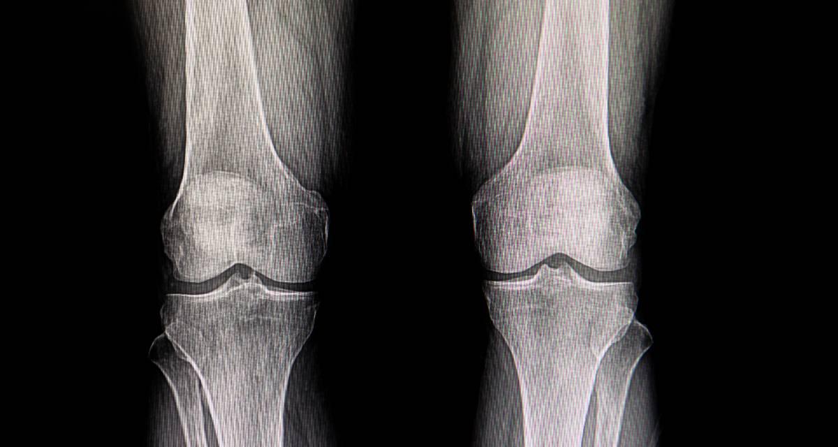 Medicina para la artrosis: ¡las 6 más utilizadas! 1
