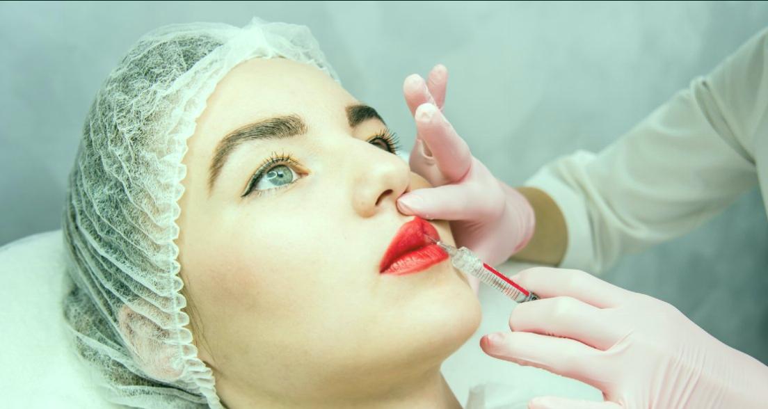 Cómo funciona el relleno de labios: tipos y cuidados 14