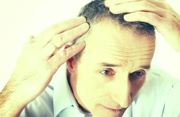 Recetas de té para tratar la caída del cabello y la calvicie 1