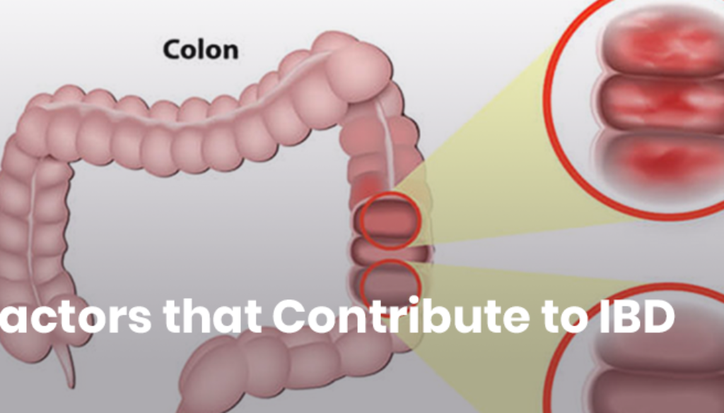 15-Hidden-Causes-of-IBD-Ulcerative-Colitis-Crohns.png