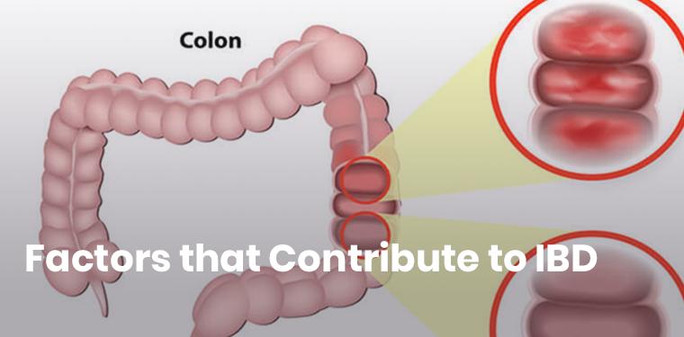 12 EII (colitis ulcerosa y de Crohn) Factores contribuyentes 1