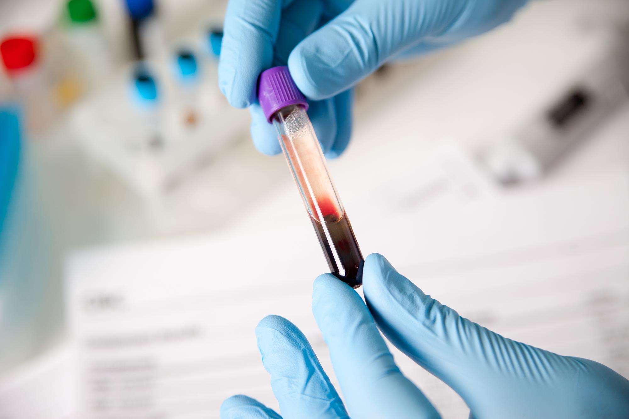 Prueba de 17-hidroxiprogesterona: niveles normales y significado 1