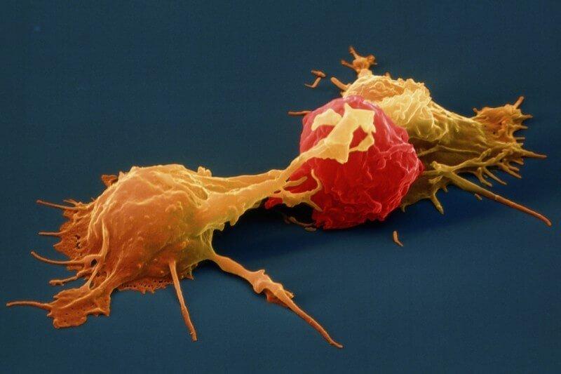 Acerca de las células naturales fatales y cómo aumentarlas y disminuirlas 1