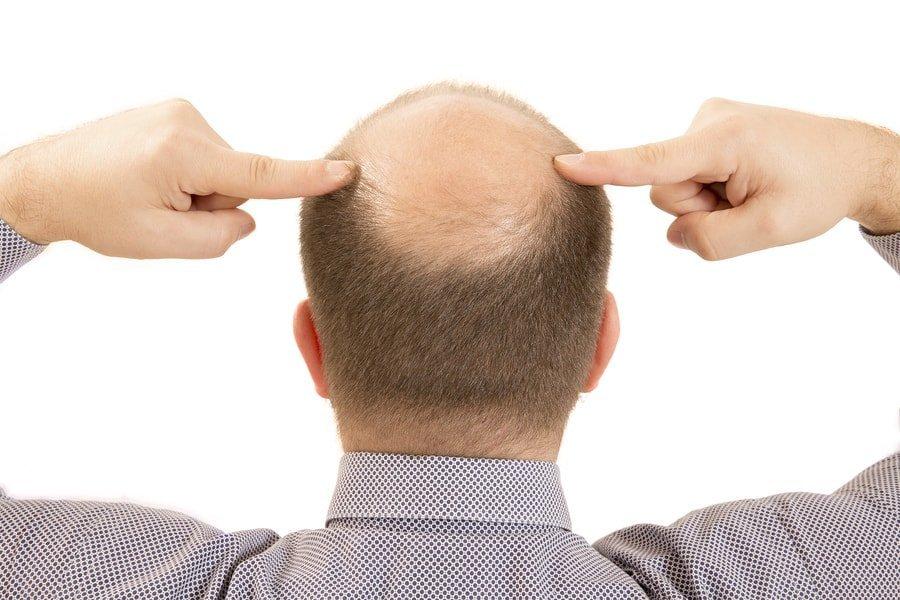 Minoxidil para hombres y mujeres Pérdida de cabello + Efectos secundarios y dosis 1