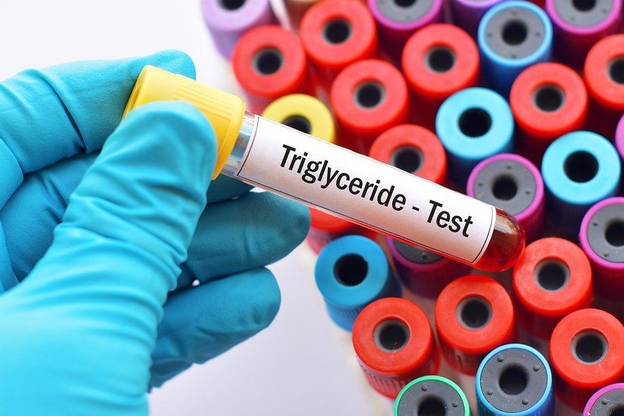 ¿Por qué sus triglicéridos son bajos? Enlace a los niveles de LDL y HDL 1
