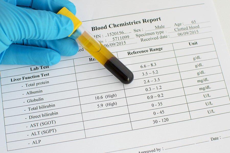 Urobilinógeno en la orina: niveles bajos y altos + rango normal 1
