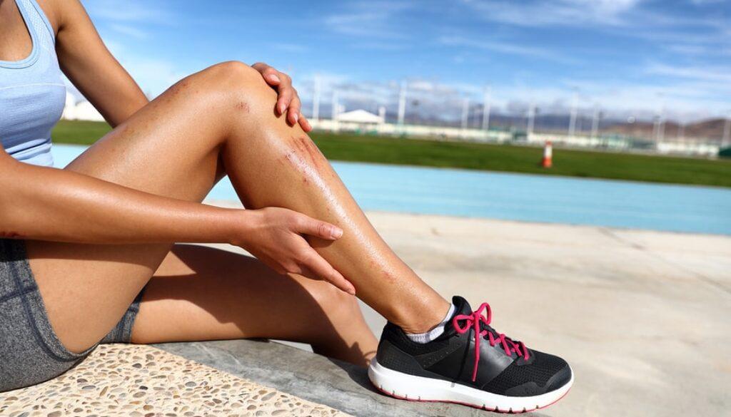 bigstock-Sports-injury-painful-scratche-231348868-min.jpg
